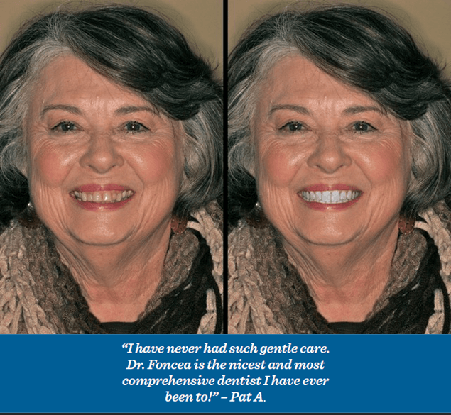 Knoxville Dental Technologies - Dr. Pablo Foncea Beautiful Smile in a Snap before and After Photo