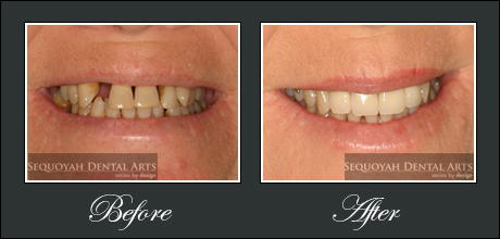 Dental Implants Knoxville - Before and After Image