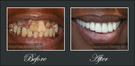 Cosmetic Dentistry Knoxville - Before and After Image