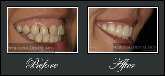 Porcelain Veneers Knoxville - Before and After Image