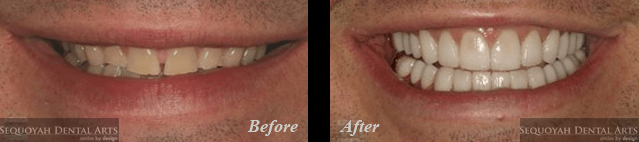 Dentist Knoxville - Before and After Image 1