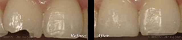 Dentist Knoxville - Before and After Image 2
