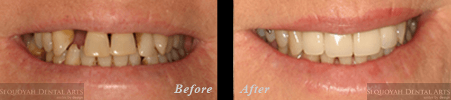 Dentist Knoxville - Before and After Image 3
