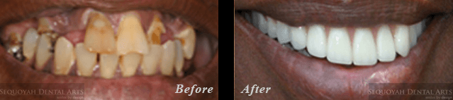 Dentist Knoxville - Before and After Image 4