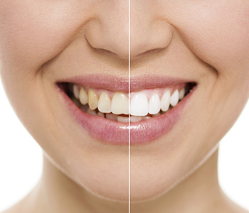 Knoxville, TN area dentist who focuses on cosmetic dentistry
