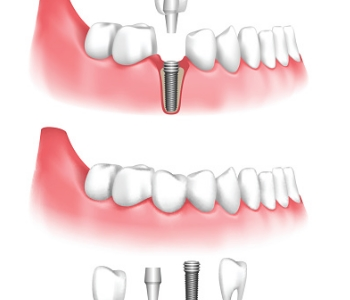 Dental implant animation