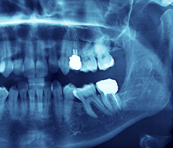 Placement of dental veneers