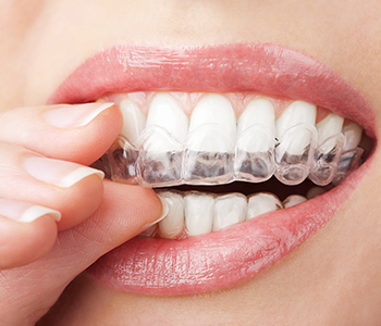 Transparent braces Straighten Teeth