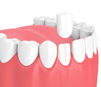 What are alternatives to porcelain veneers as a treatment for imperfections in Knoxville, TN?