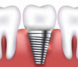 Drs. Pablo Foncea and Mariko McCall - Which tooth replacement option is right for me