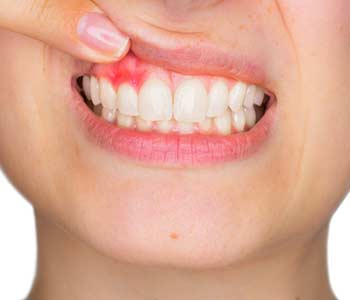 Learn about the diagnosis and treatment of gum disease with our dentist in Knoxville, TN
