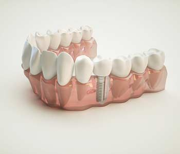 Dentists in Knoxville, TN offer tooth replacement options for patients experiencing tooth loss