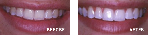 Teeth whitening Before After Image