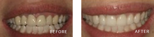 Dental Crown Before After