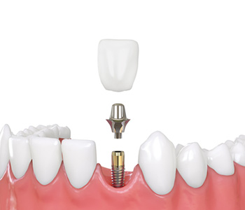 Knoxville, TN area dentist describes the benefits of using dental implants to replace missing teeth
