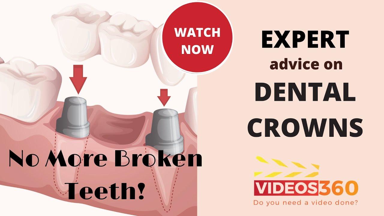 Dental Crowns at Sequoyah Dental Arts - Dr. Pablo Foncea