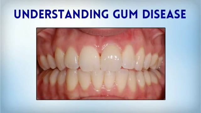 Gum Disease Knoxville
